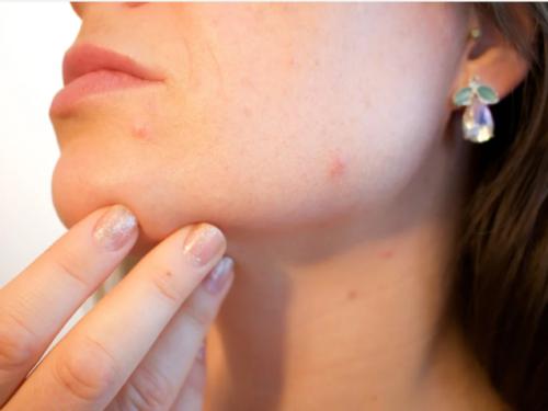 Pelle e salute: perché è bene non trascurarla